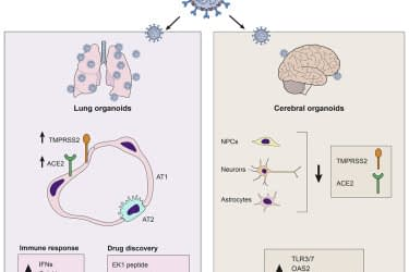 Organoids of Lung and Brain respond differently to SARS-CoV-2